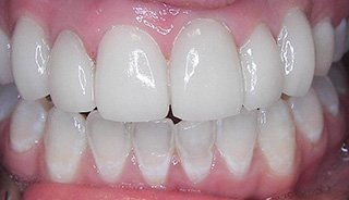 Porcelain Veneers- After