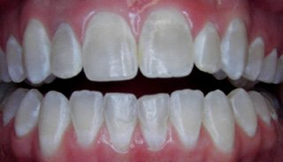 Porcelain Veneers- Before