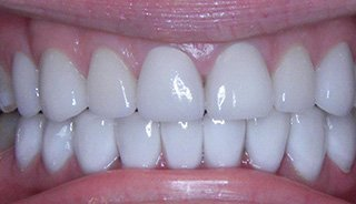 Upper & Lower Crowns- After