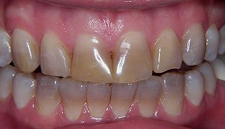 Upper & Lower Crowns- Before