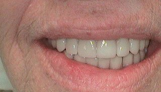 Full Mouth Reconstruction- After