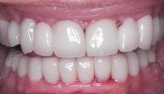 Full Mouth Reconstruction/ Crown & Bridge- After