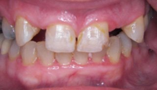 Full Mouth Reconstruction/ Crown & Bridge- Before