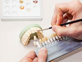 Science Dental Implants Anderson
